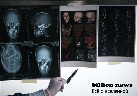 Самые интересные факты: человек прожил 4 года с ножом в черепе