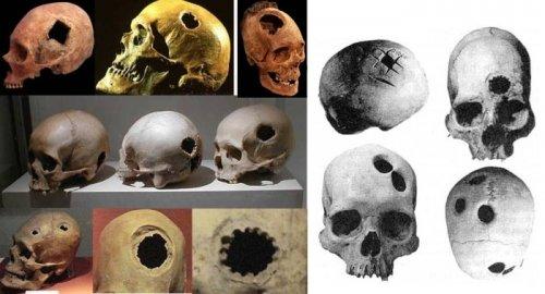 В Африке 3000 лет назад тоже делали трепанацию черепа (2 фото)