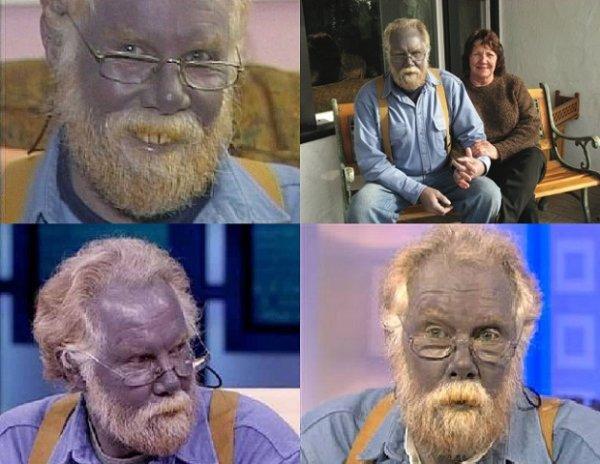 Человек синего цвета из Калифорнии