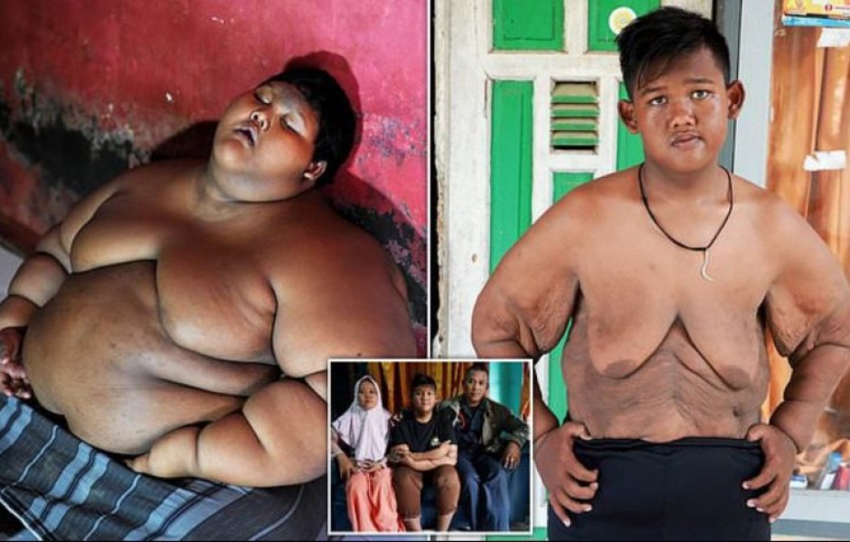 Самый толстый мальчик в мире, который весил 192 кг в 10-летнем возрасте, похудел больше, чем вдвое...