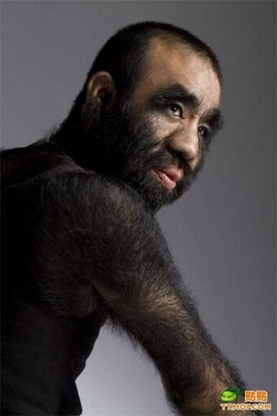 Самый волосатый человек в мире (12 фото)