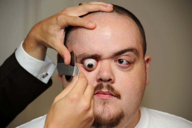 Человек с самыми выпирающими глазами в мире (4 фото + видео)