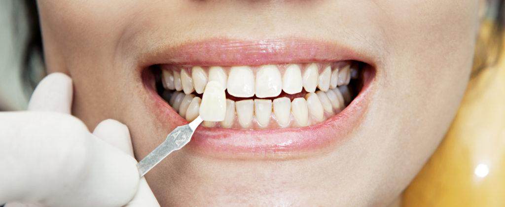 виниры на зубы в китае цена