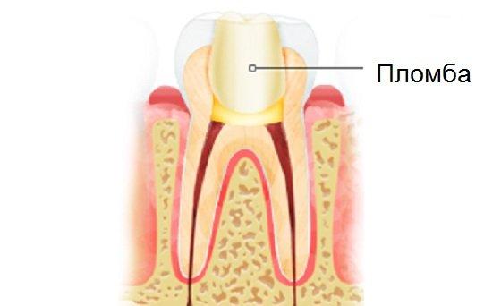 Какие зубные пломбы бывают в стоматологиях Воронежа и других городов