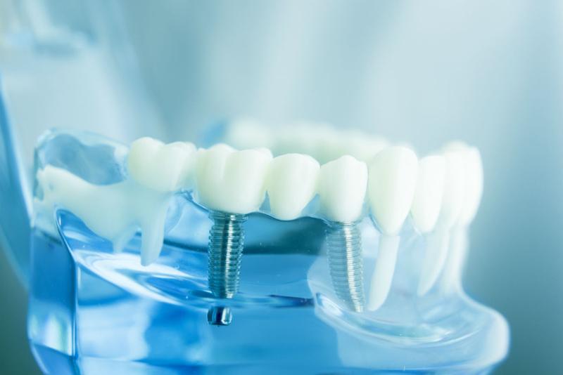 Факты об имплантации зубов