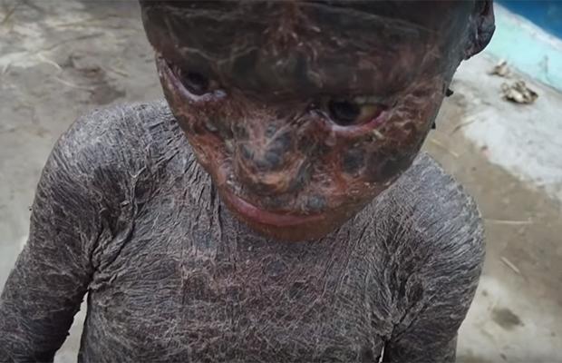 В Индии живет мальчик со змеиной кожей (7 фото)